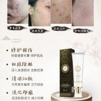 汉宫春祛痘膏